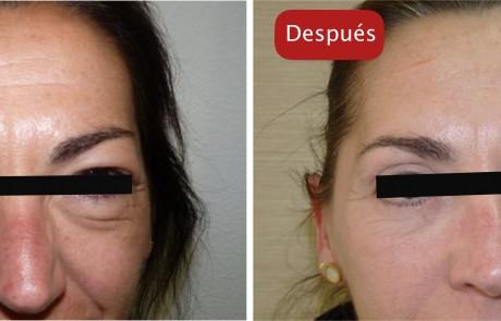 Resultados - Eliminación bolsas de los ojos tratamientos esteticos y blefaroplastia