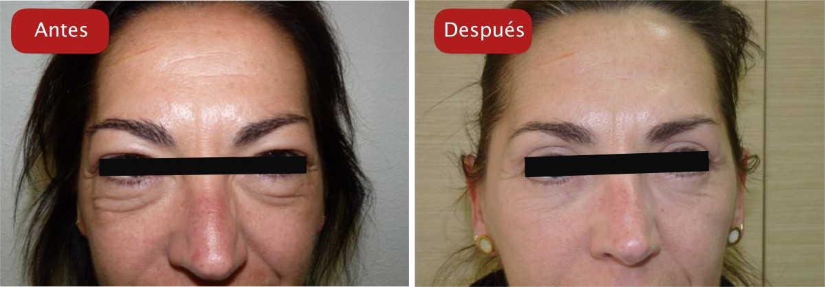 Nectarclinic Xàtiva - Resultados - Eliminación bolsas de los ojos tratamientos esteticos y blefaroplastia