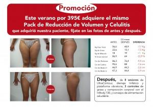NectarCLINIC Xàtiva - Oferta - pack reduccion celulitis volumen caderas cintura abdomen ultra-cavitación ultracontour