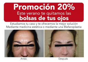 NectarCLINIC Xàtiva - Oferta - eliminación bolsa de los ojos blefaroplastia