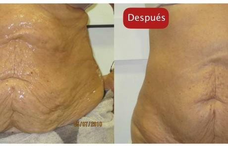 Resultados - Tratamietos PIELUM abdomen reafirmacion post perdida de peso