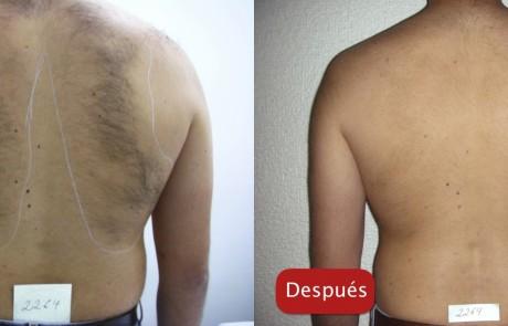 Resultados - depiacion laser eliminación bello cuerpo espalda plataforma esfera plus