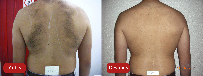Nectarclinic Xàtiva - Resultados - depiacion laser eliminación bello cuerpo espalda plataforma esfera plus