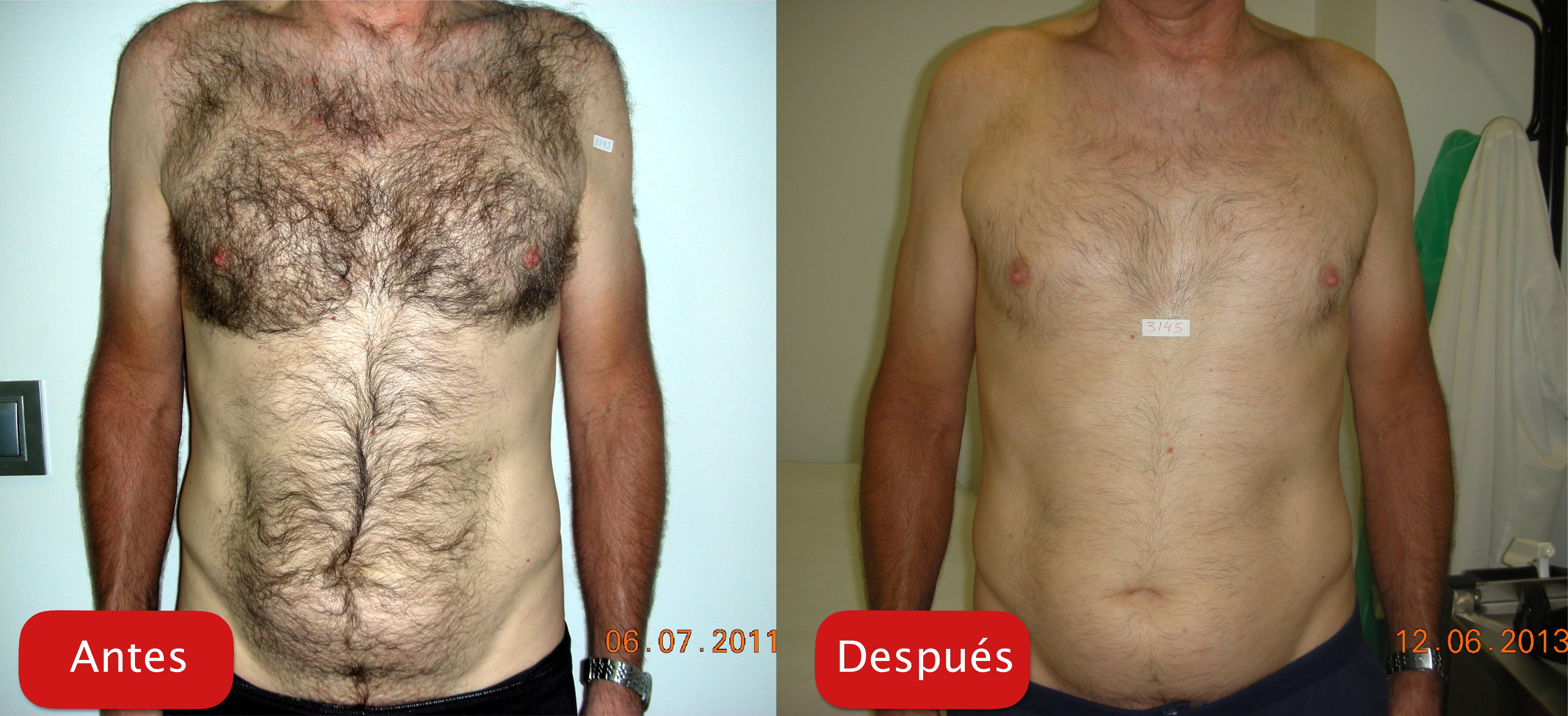 Nectarclinic Xàtiva - Resultados - depiacion laser eliminación bello cuerpo torso plataforma esfera plus