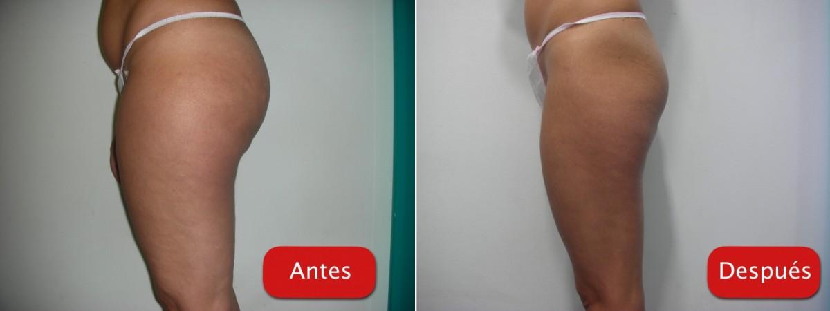 Resultados - Ultra-cavitacion reduccion volumen caderas celulitis piernas