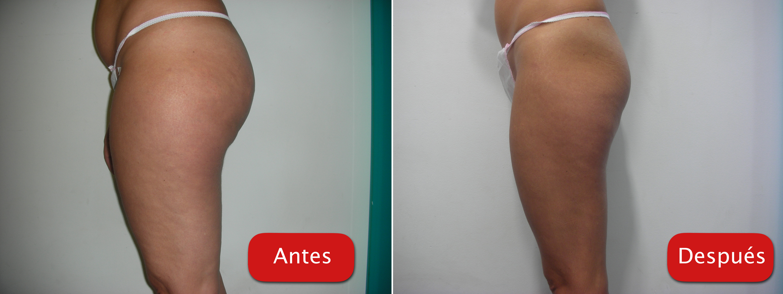 Nectarclinic Xàtiva - Resultados - Ultra-cavitacion reduccion volumen caderas celulitis piernas