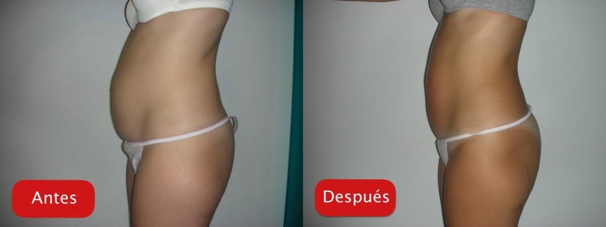 Resultados - Tratamiento ultracontour reduccioin grasa localizada abdomen