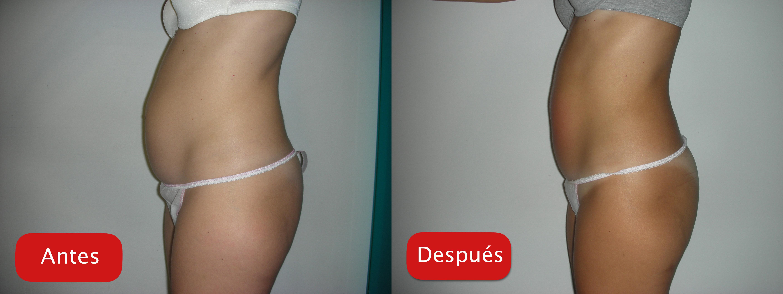 Nectarclinic Xàtiva - Resultados - Tratamiento ultracontour reduccioin grasa localizada abdomen