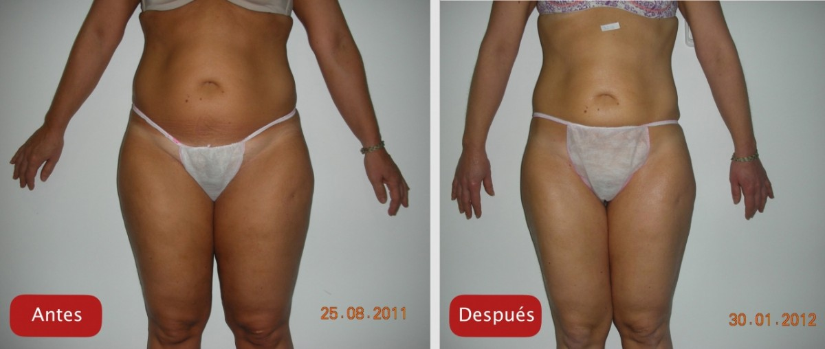Resultados Reafirmacion reduccion volumen UltraContour antes y despues resultados