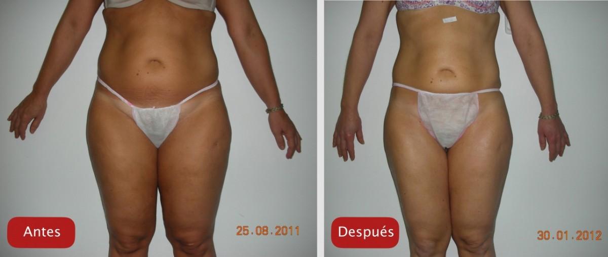 Nectarclinic Xàtiva - Resultados - Reafirmacion reduccion volumen UltraContour antes y despues resultados