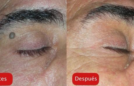 Resultados - Tratamiento plataforma DEKA eliminacion verruga antes y depues