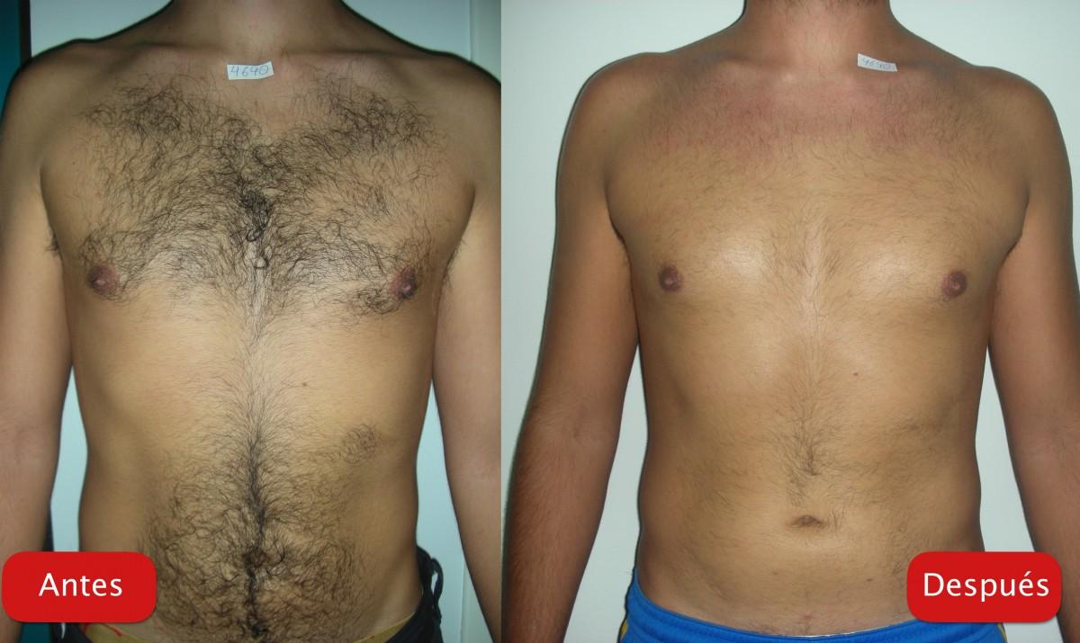 Depilación antes y después pectorales