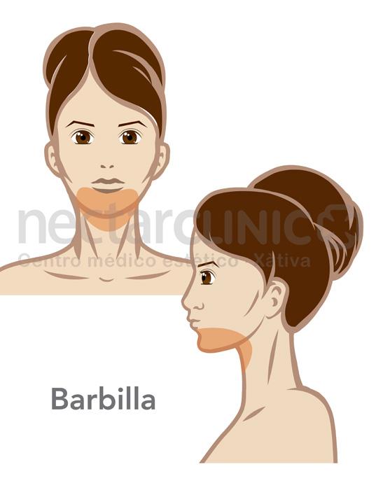 Precio Depilaci 243 N Barbilla Mujer Nectarclinic X 224 Tiva